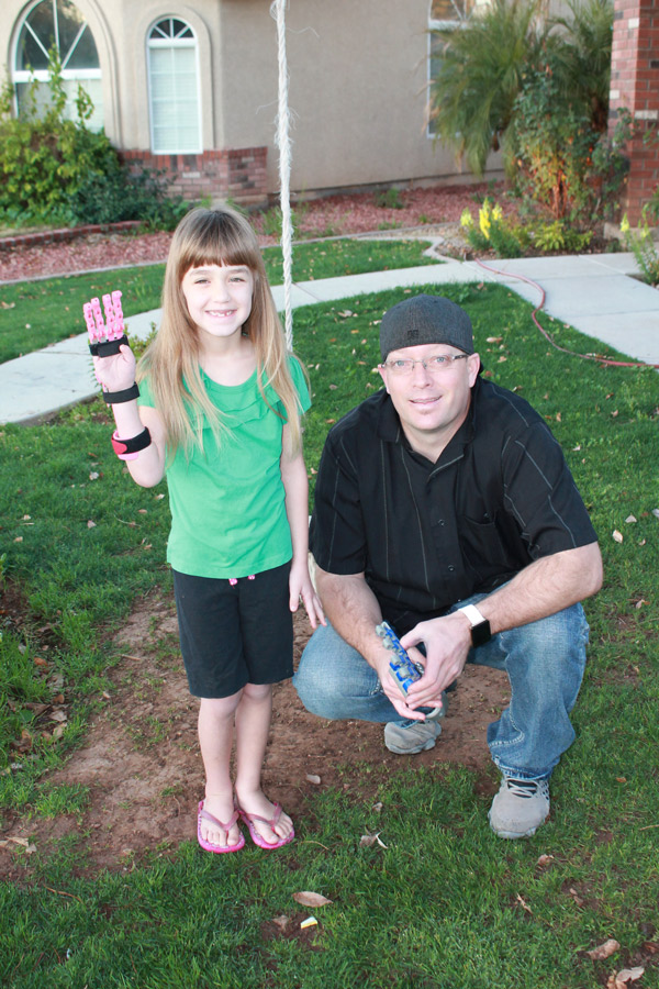 Neighbor Creates 3D Prosthetic Hand For Six Year Old Born Without Fingers