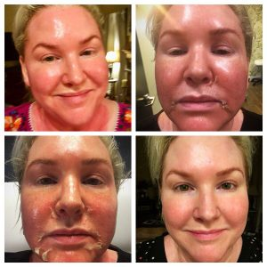 Various phases of the chemical peel that reveals new, regenerated skin: TOP LEFT: Before treatment; TOP RIGHT: After treatment; BOTTOM LEFT: Healing, pealing; BOTTOM RIGHT: Smooth result. Photo courtesy of Layne Nyberg.